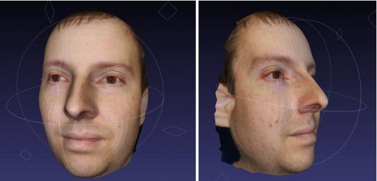 facial_mapping.jpg